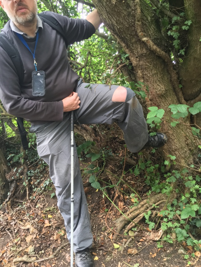 Paul stands before a large tree lifting his leg to display the large rip in the knee of the left leg of his trousers.
